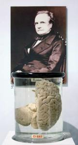 C Babbage brain